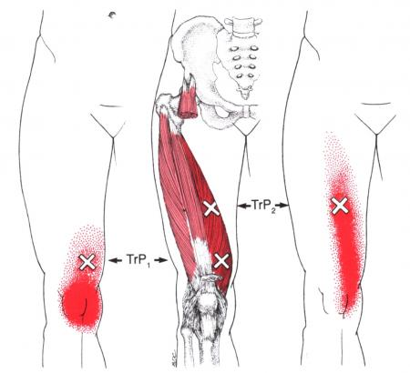 Knee Pain? Thought about trigger points?