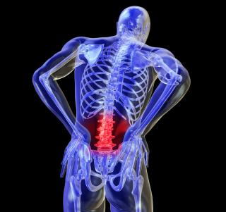 Acute Back Pain Action Plan – The first 48hrs