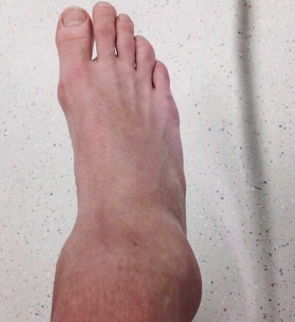 Woah! Did someone sprain their ankle?!