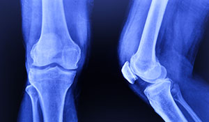 Snap, crackle & pop – Why do your joints crack?