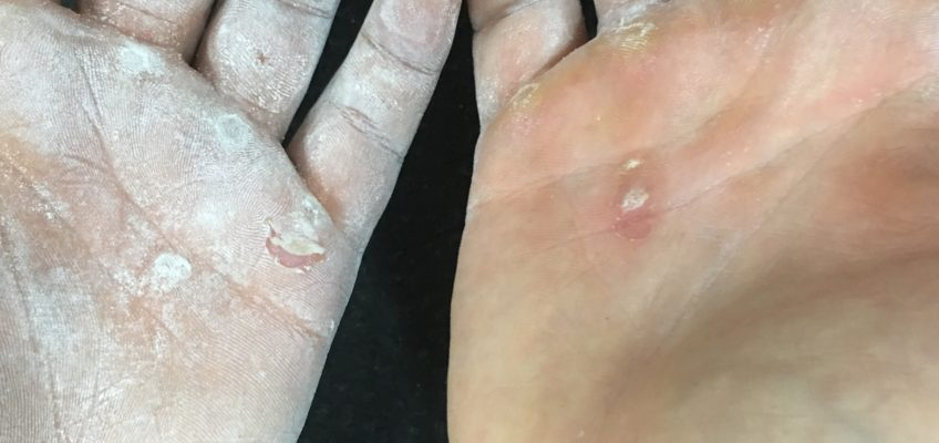 Ripped Hands: What are they really telling you?